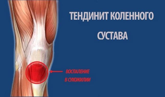 éles fájdalom a térdízület kezelésében
