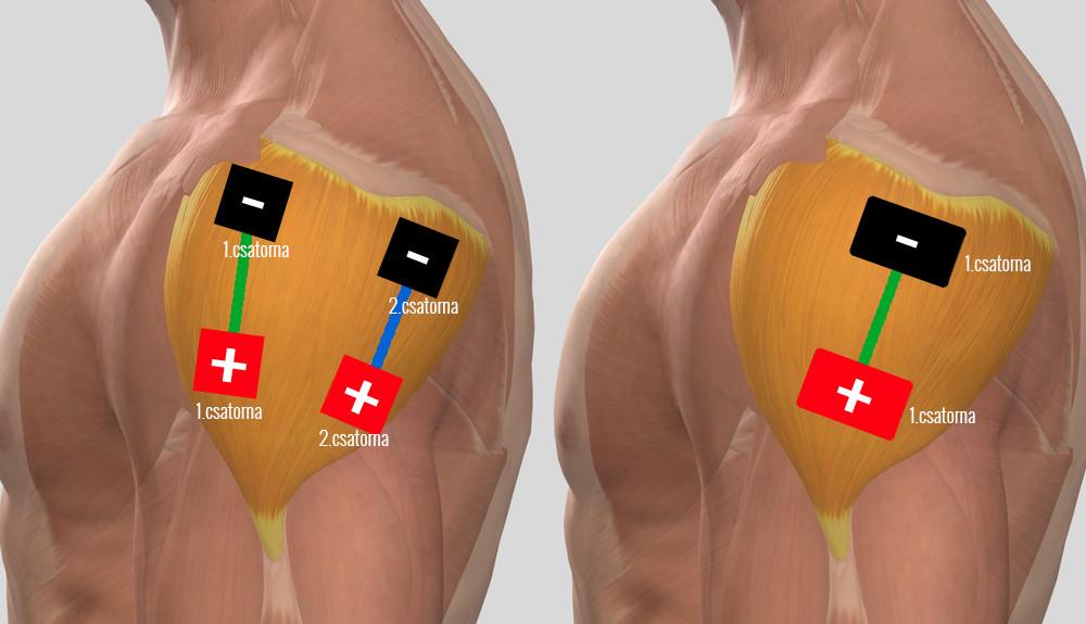 fájó fájdalom a vállízületben hogyan kell kezelni)