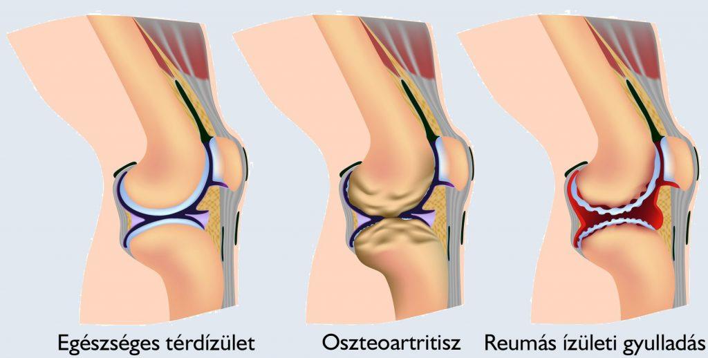 fájdalom térdízületi kezelés közben