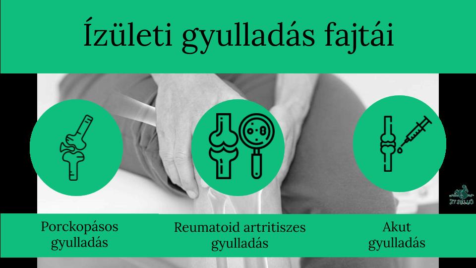 amely segít a vállízület ízületi gyulladásában
