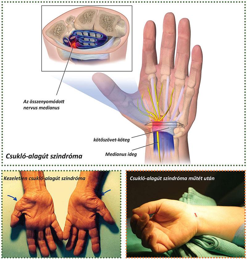 vírusos torokgyulladás kezelése házilag