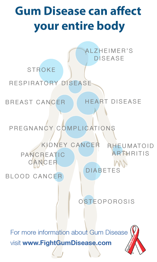 chladimiosis és ízületi fájdalmak akut fájdalom a csukló ízületeiben