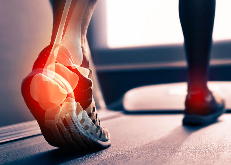 csillapítja a lábak ízületeinek fájdalmát