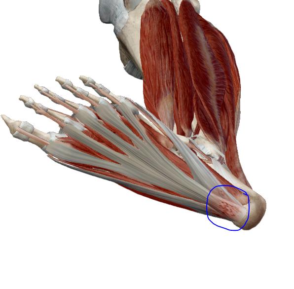 csípő fájdalom sarok fájdalom