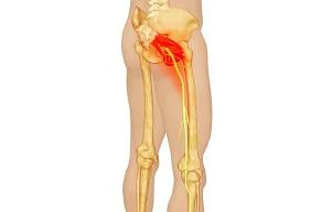 Csípő fájdalom - Ficam