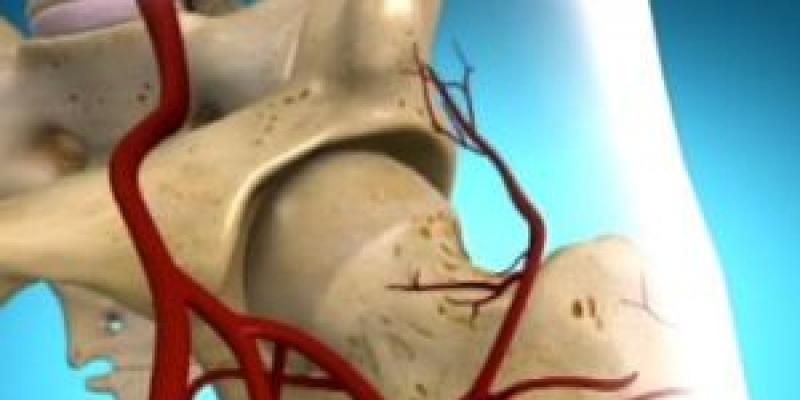 csípőízületek dysplasztikus artrózisa