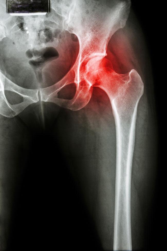 csípőízületi fájdalmak áttekintése után)