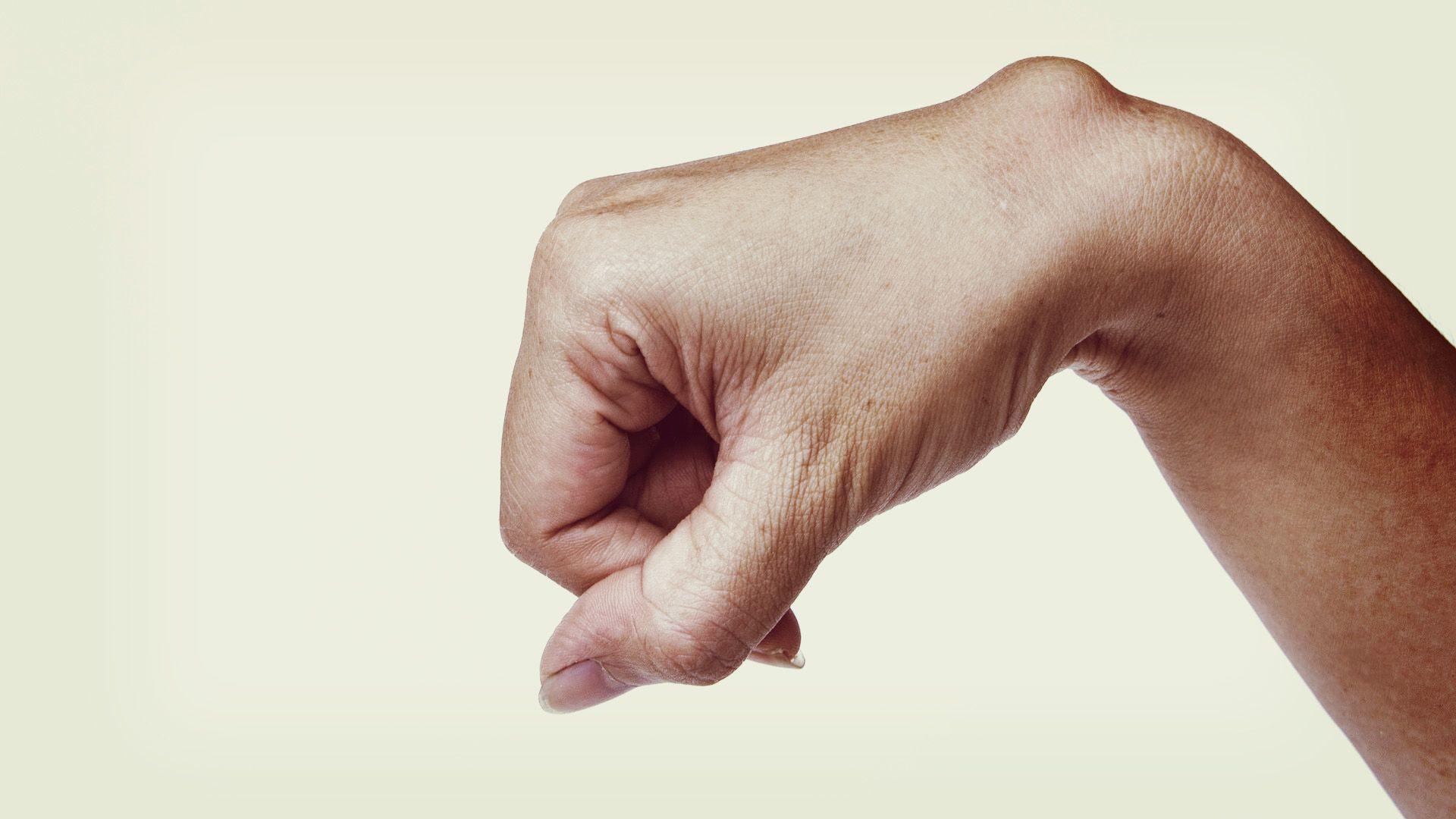 csukló ganglioma kezelés)