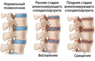 vitaminok a csípőízület fájdalmához