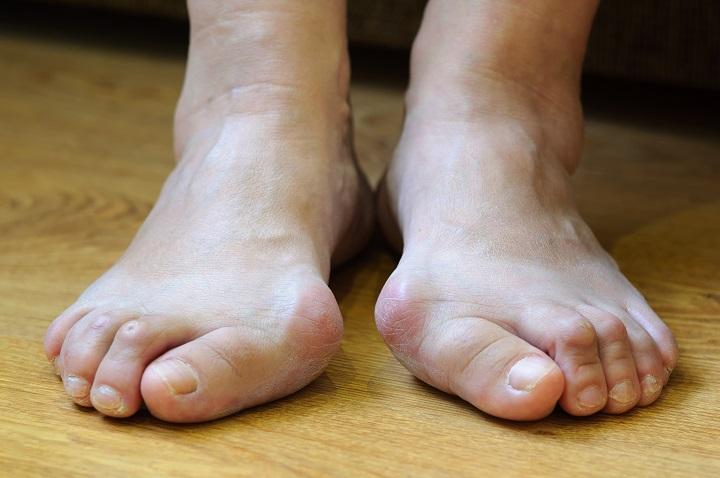 a lábujjak ízületeinek gyulladása okokat okoz