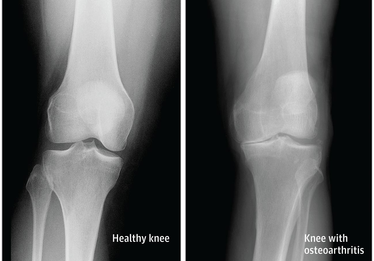 hatékony gyógymódok a boka osteoarthritis kezelésére