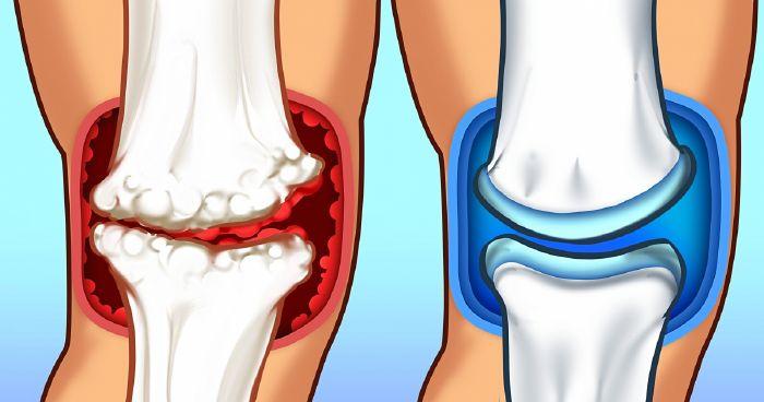 ízületi fájdalom az ízületi fájdalomtól