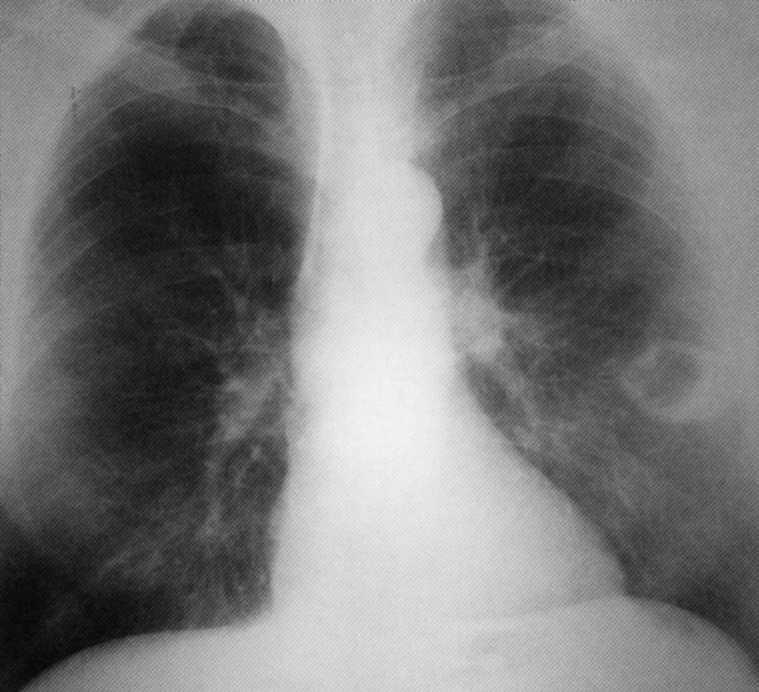kötőszövet tüdőkezelés