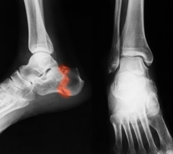 hogyan kell kezelni a bokaízületet törés után