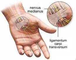 csukló ligamentum károsodása)