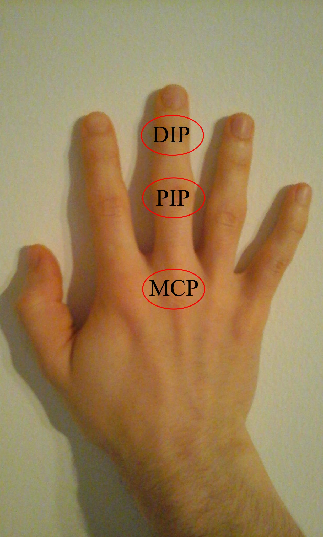 a hüvelykujj ízületei fájnak mi ez isiász egy ízületi betegség