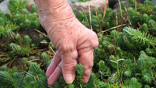 rheumatoid arthritis lábujjai