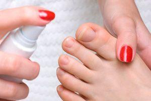 dimexid közös kezelési recept köszvényes láb tünetei