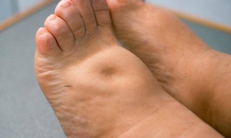 duzzadt láb kezelés