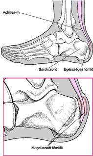 duzzanat és fájdalom a lábujjak ízületeiben krém a térdre