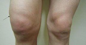 hogyan duzzadnak az ízületek a bokaízület 1 és 2 fokos artrózisa