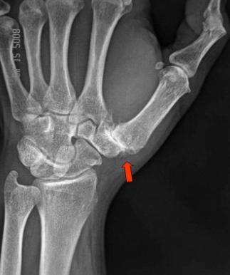 metacarpalis artrosis