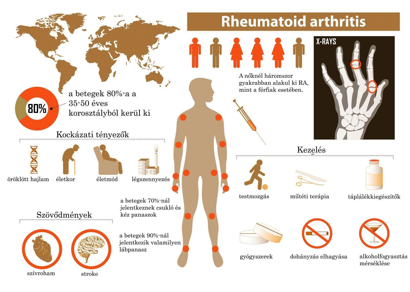 posztraumás artritisz ujjkezelés