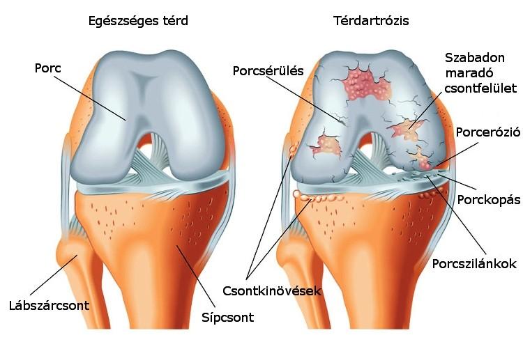 a térd artrózisának rézkezelése)