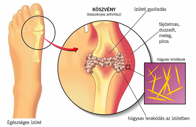 fájdalom a lábak és a lábujjak ízületeiben)