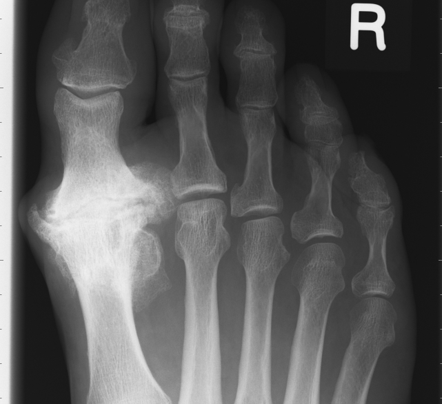 osteoarthritis 1st mtp joint)