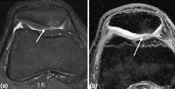 térdízület kezelésének szérus bursitis