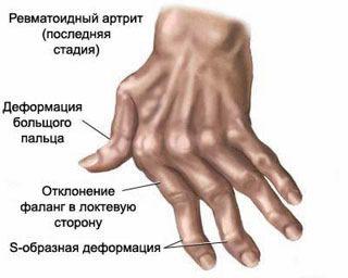 mi a teendő, ha fáj az ujjízület fájdalom a könyökízületek kiegyenesítésekor
