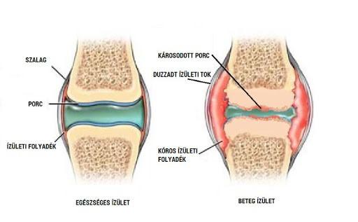 A térdfájdalom három tipikus esete - fájdalomportáptigroup.hu
