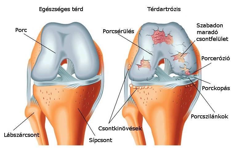 a térdízület kezelésének hátsó keresztszalagja)