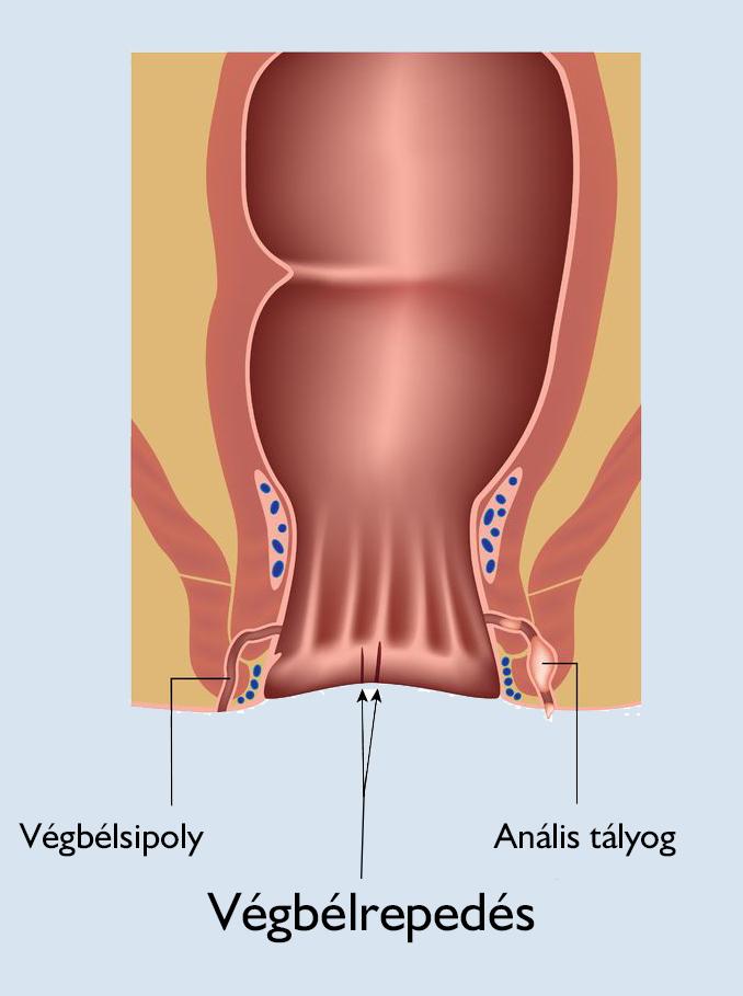 kenőcsök térdízület osteoporosisához)