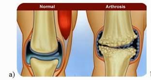 a térd kezelésének artrózisa