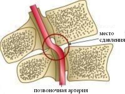melyik gél jobb az oszteokondrozis esetén)