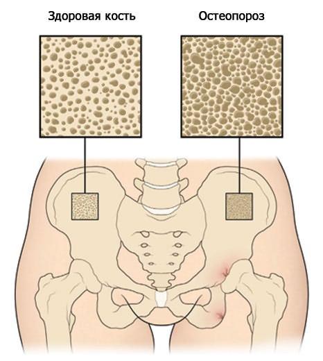 csípőbetegség statisztikák rheumatoid arthritis lábujjai