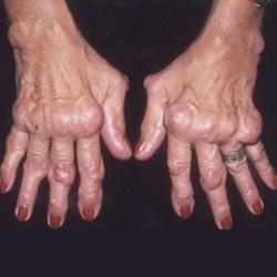 hajhullás ízületi fájdalom nyomás tünetei