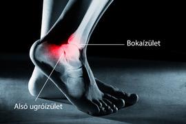 a láb boka fájdalma ízületi fájdalmak jelentkeztek