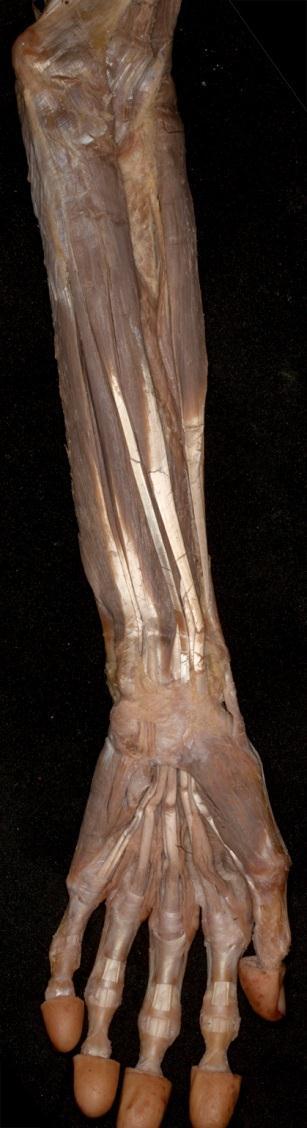 könyökízület periarthritis kezelése