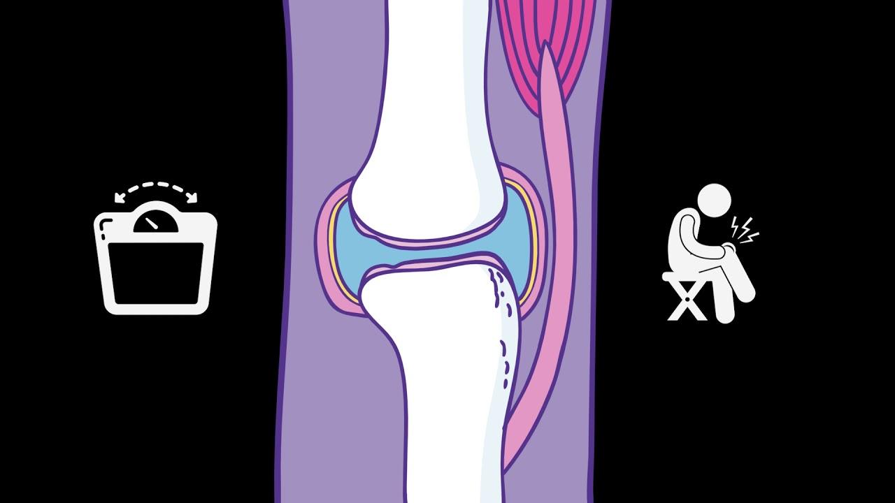 gázinjekciós kezelés osteoarthritis esetén