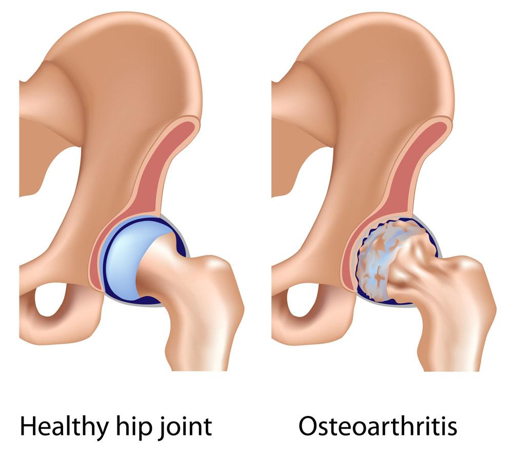 csípőízület vagy coxarthrosis