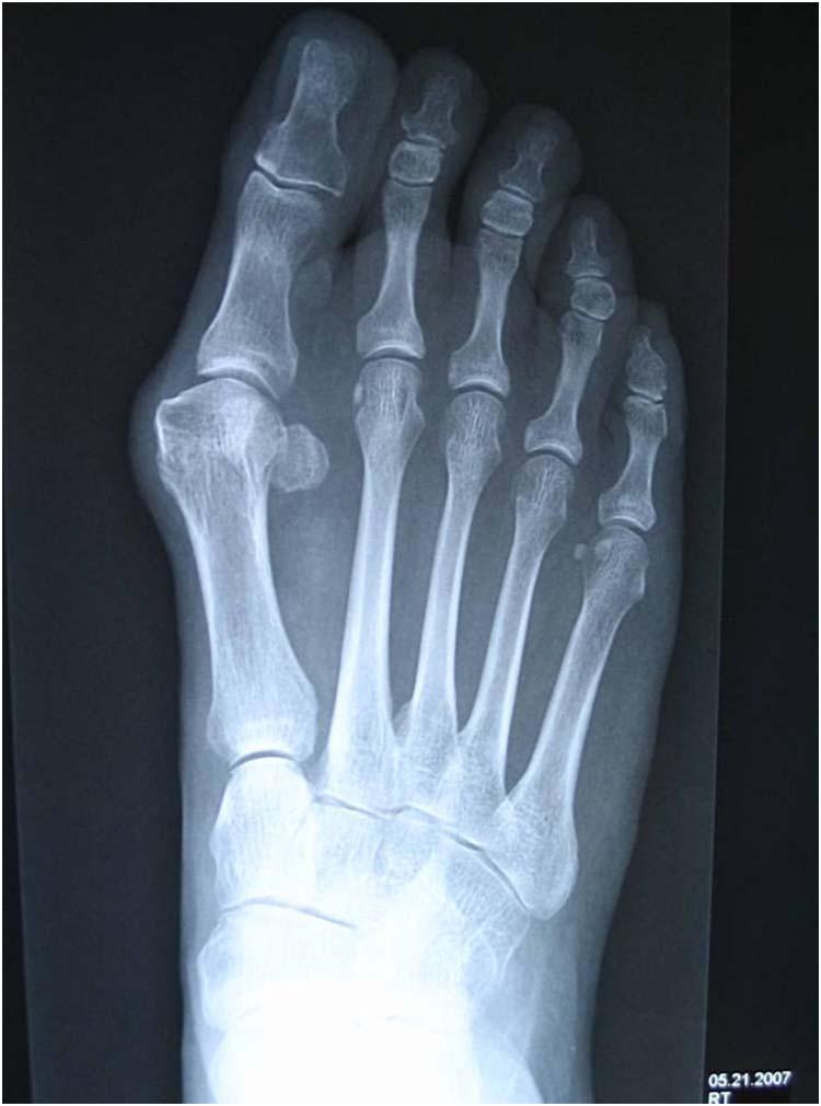 Metatarsalis phalangus arthrosis