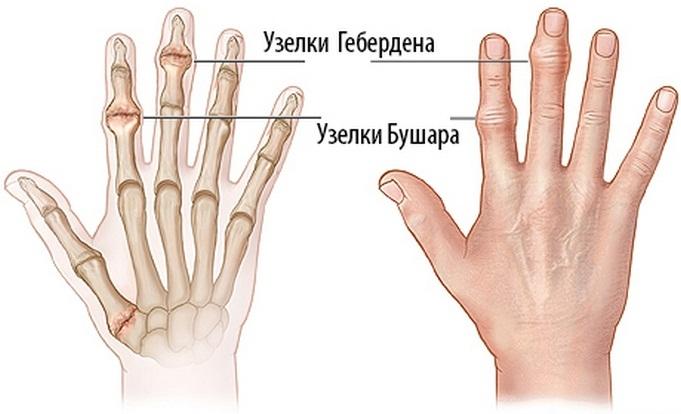 fájdalom a bal kéz hüvelykujjának ízületében kozmoenergia együttes kezelés