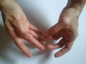 fájdalom a kéz kisujja ízületében