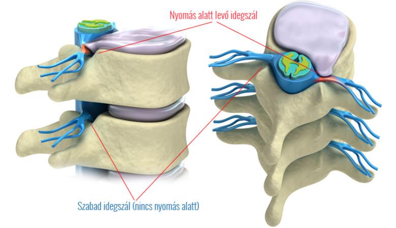 gerinc és ízületek nem műtéti kezelése)
