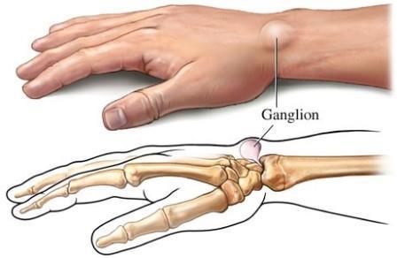 gerincfájdalom a kéz ízületeiben