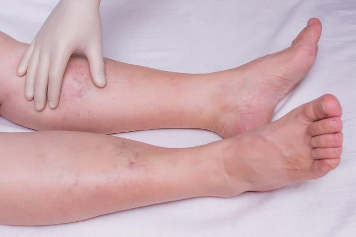 gyógymódok a duzzadt lábak terhesség alatt