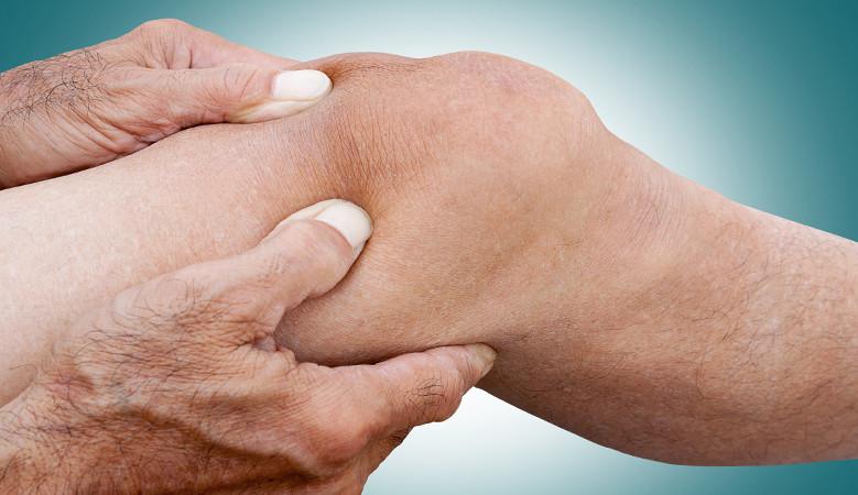 térd ízületi sérülések, hogyan lehet enyhíteni a fájdalmat ha a metakarpális ízület fáj